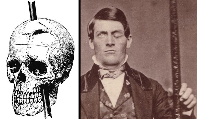 Серьезная травма головного мозга Финнеас Гейдж — один из первых людей, на котором хирурги рискнули провести полноценную нейрохирургическую операцию. В 1840 году, подрывник Гейдж работал на вермонтской шахте и не рассчитал время горения шнура. Снаряд взорвался в 20-ти метрах от Финнеаса, зацепив взрывной волной стальной прут. Он назквозь пробил голову несчастного. Хирурги сумели вытащить из мозга Финнеаса целых тридцать деформированных осколков. Спустя полгода, Гейдж вернулся к нормальной жизни, хотя и страдал от частых головных болей.