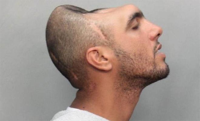 Человек с половиной головы В 2010 году, сеть обошла фотография мужчины, лишенного половины головы. Поднялась целая волна обсуждения реальности снимка — что совершенно понятно, ведь он и в самом деле выглядит совершенно инфернально. Фотография оказалась настоящей. Парня на ней зовут Карлос Родригес, известный среди друзей как «Половинка». Родригес попал в страшную аварию, вылетев сквозь лобовое стекло автомобиля. И, тем не менее, современная нейрохирургия и нейропластика смогли спасти человека.