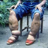 8 древних болезней, которые должны остаться в прошлом