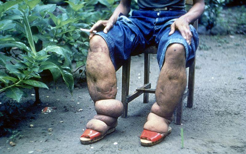 Филярии Известно около 10 видов филярий, паразитирующих на человеке. При их исключительной толщине (диаметром не более 0,3 мм), филярии могут достигать в длину до полуметра. Переносчиками паразитов являются кровососущие насекомые, реже клещи. В теле человека филярии поселяются в лимфатических сосудах, в полостях тела и коже. Блокируя лимфатическую систему, могут стать причиной слоновьей болезни или потери зрения при филяриатозе глаз.