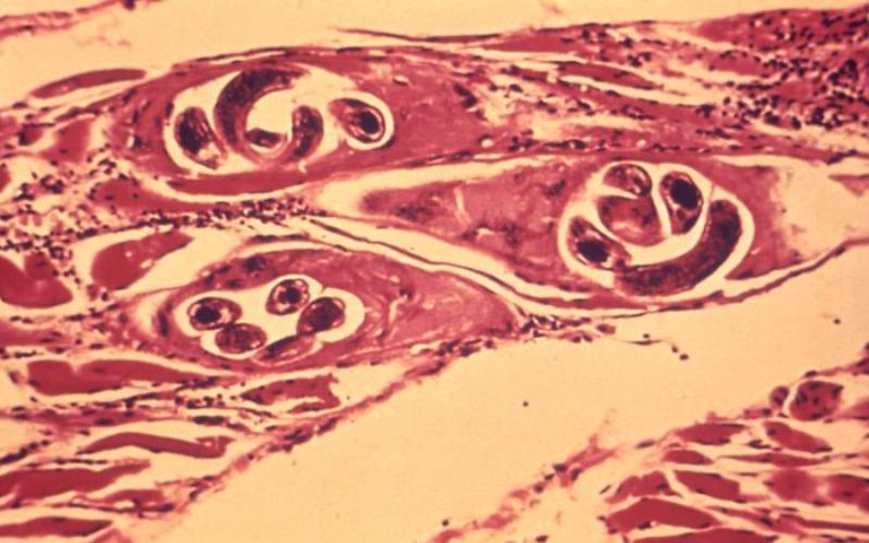 Трихинеллы Трихинелл следует бояться любителям шашлыка из свинины – именно в этом мясе паразиты откладывают свои яйца. При плохой термической обработке, личинки трихинелл попадают в организм человека, вызывая аллергию, лихорадку и боль в суставах и мышцах. Симптомы трихинеллеза обычно начинают проявляться спустя 2-3 недели после заражения.