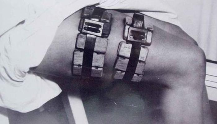 Ловушка блох Конечно, ловушку для блох можно назвать медицинским инструментом только с небольшой натяжкой. Но это устройство, на самом деле, способствовало разработке вакцины от сыпного тифа: врачи догадались, что болезнь переносится насекомыми и проводили эксперименты на пойманных с помощью этого устройства тварях.