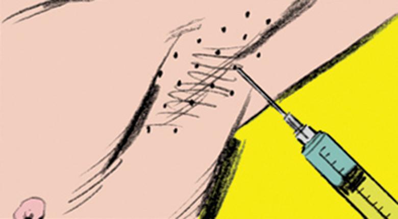Ботокс Да, этот препарат можно использовать и таким способом. Инъекции нейротоксина, которыми разглаживают морщины, вполне справляются с нервными окончаниями, ответственными за выработку пота. Этот метод не вечен: спустя 4-6 месяцев тело вновь начнет вырабатывать пот на прежнем уровне.