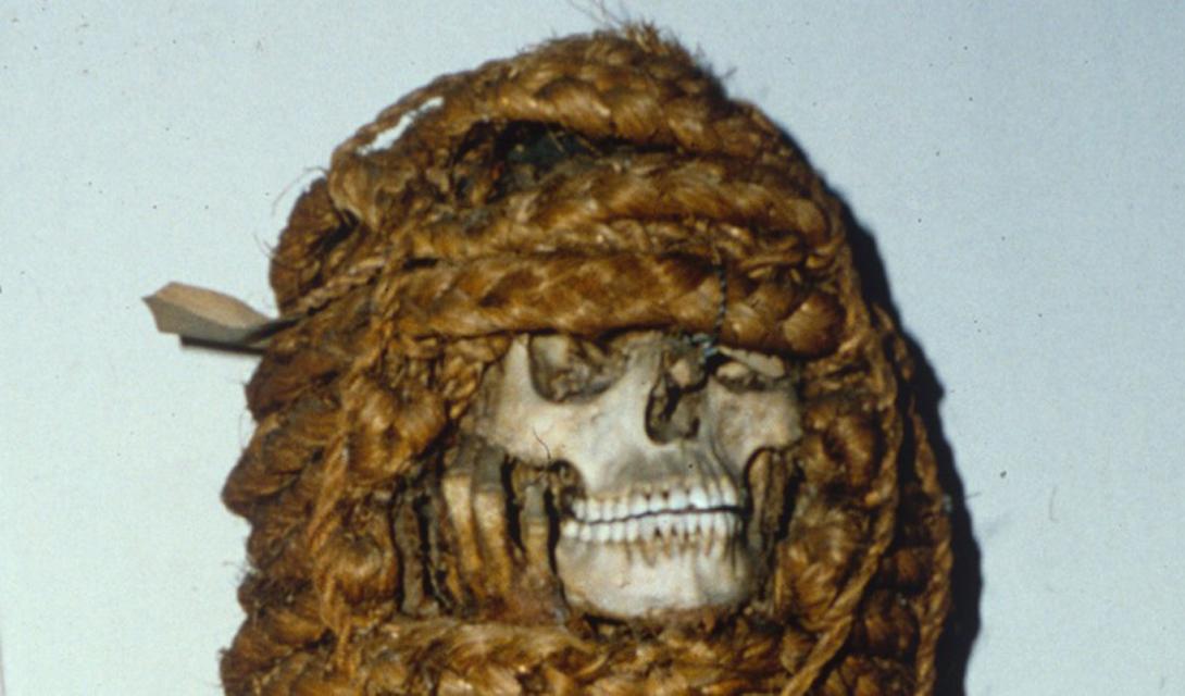 Мумия Исследование мумии позволило сделать несколько важных для современной клинической медицины выводов. Ученые обнаружили самый старый случай сердечной недостаточности в мумифицированных остатках египетского сановника, возрастом 3 500 лет.