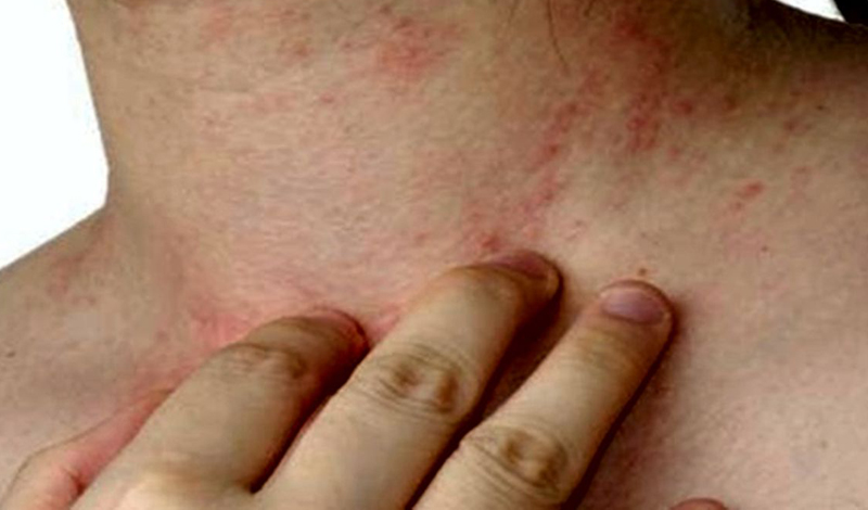 Лихорадка Зика Вирус держится в крови несколько дней, после чего начинается лихорадка. Для человека она не опасна: переносится легко, симптомы, зачастую, не требуют даже вмешательства врача. Ни лекарства, ни вакцины от лихорадки Зика нет.