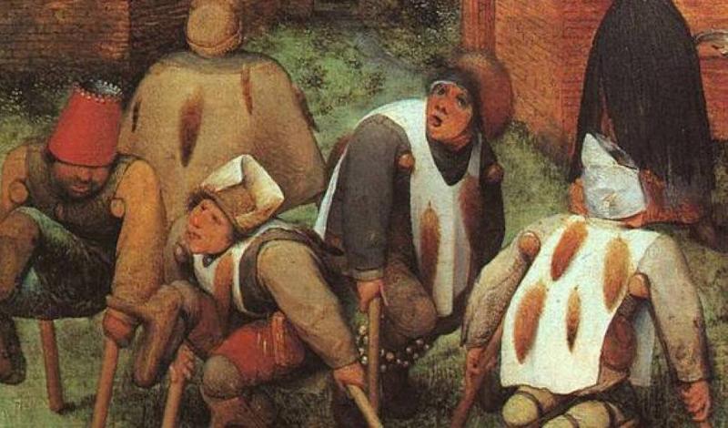 Средневековое протезирование Средние века стали золотым веком протезирования. Частота войн привела к увеличению людей, лишившихся конечностей. О функциональности речи не было: протез выполнял роль визуальной «заглушки», чтобы человек не чувствовал себя изгоем. Воины часто ставили себе крюк вместо потерянной ладони.