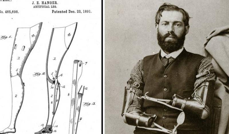 Гражданская война США Гражданская война заставила многих хирургов обратить свое внимание на протезирование. Развитие анестезии сделало процесс ампутации проще, врачи теперь могли работать с более продвинутыми протезами. В это время получили распространение новые металлы — к примеру, легкий и прочный алюминий.