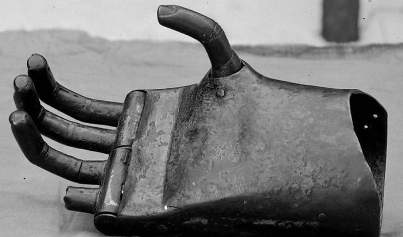 Эпоха ренессанса В эпоху Возрождения врачи продвинулись еще дальше. Протезы этого времени уже позволяли человеку восполнять некоторые функции. Металлические руки, кисти, с регулируемыми пальцами — все это разрабатывалось для рыцарей, стремящихся вновь владеть мечом и щитом.