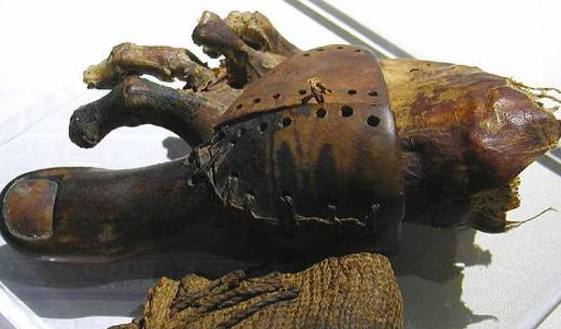 Античность Протезирование существовало с самого раннего времени. Первое письменное упоминание — ведические гимны Ригведа. Здесь повествуется о королеве-воине Вишпала, которая получила железную ногу после неудачной битвы. Египтяне также использовали протезы еще в 3000 году д.н.э.