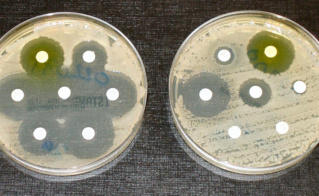 Пандемия резистентных бактерий Вирусы вроде испанского гриппа не имеют монополии на уничтожение человечества. Те же бактерии тоже стремятся урвать свой кусок пирога. И самое забавное, что чем больше мы стараемся уничтожить опасные бактерии, тем сильнее они становятся. Вот, как это происходит: доза антибиотиков введенная человеку или животному убивает большую часть вредоносных бактерий — но некоторые, с каким-то генетическим дефектом, выживают и мутируют, становясь сильнее. Уже их потомство получает иммунитет от последнего поколения лекарств и существует до тех пор, пока не погибнет от более сильного антибиотика. И все бы хорошо, вот только врачи опасаются, что рано или поздно бактерии выведут вид полностью резистентный от антибиотиков в принципе. Это может стать началом конца всего человечества.