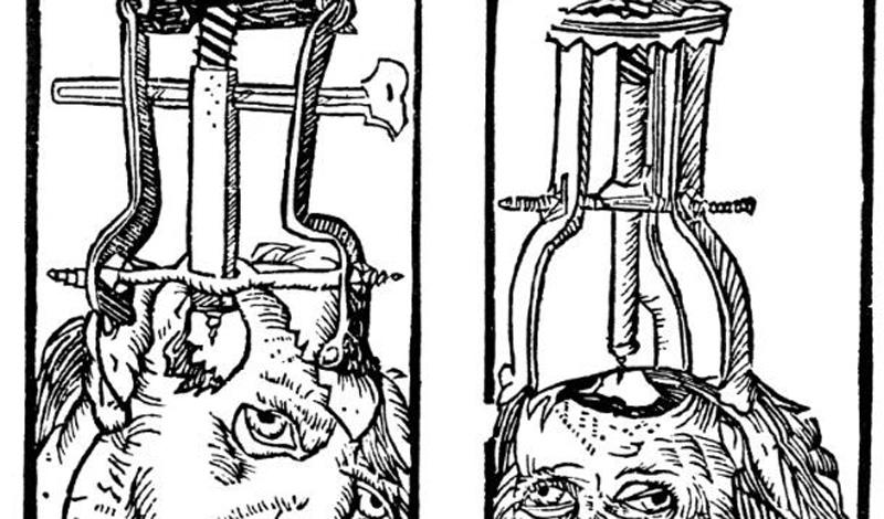 Lobotomy означает разрез головного мозга. Эта операция считается одной из самых варварских процедур, когда-либо практиковавшихся на людях.