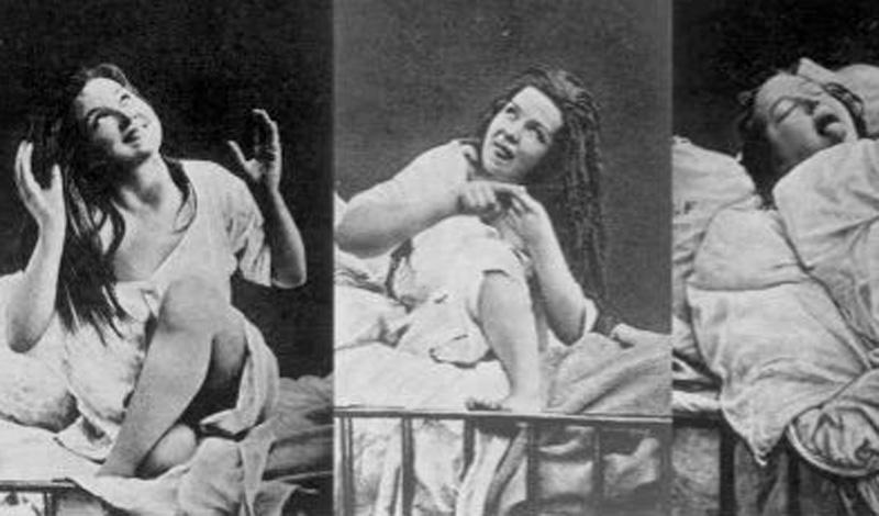 Лоботомия лобной доли была очень популярной процедурой в начале двадцатого века. Психиатры рекомендовали ее, чтобы облегчить симптомы психических заболеваний.