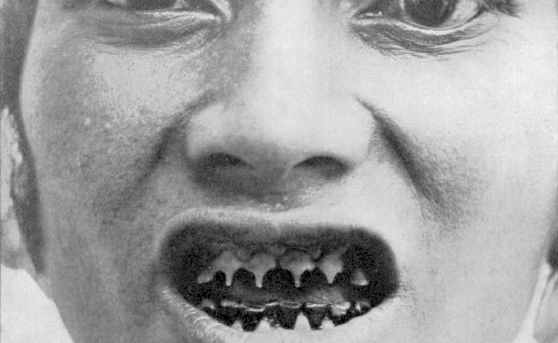 Гуро Бали Зубы людей гуро обтачиваются с самого детства. Так воины показывают противнику свою смелость и злость. На протяжении всей жизни несчастным приходится стачивать свои зубы самодельными стамесками — станешь тут злым.