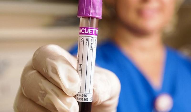 Низкий уровень холестерина может быть тоже вреден. 160 мг на децилитр крови провоцирует развитие ряда серьезных проблем, включая рак.