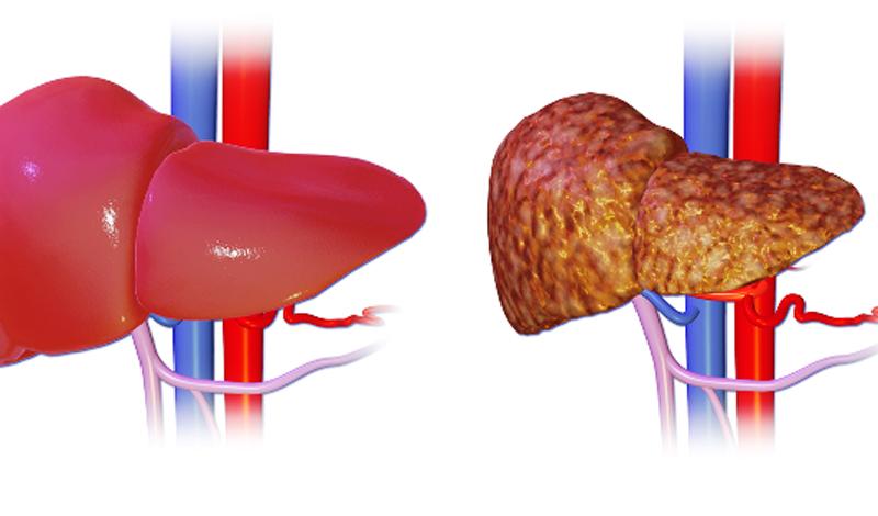 LDL холестерин считается «плохим», поскольку способствует образованию бляшек, закупоривающих артерии и делающих их менее гибкими. HDL напротив, помогает удалить холестерин из артерий в печень, где он разрушается.