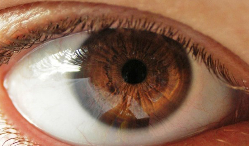 Вы можете проверить уровень холестерина самостоятельно. Белая кайма вокруг роговицы глаза покажет, что проблему надо решать в срочном порядке.