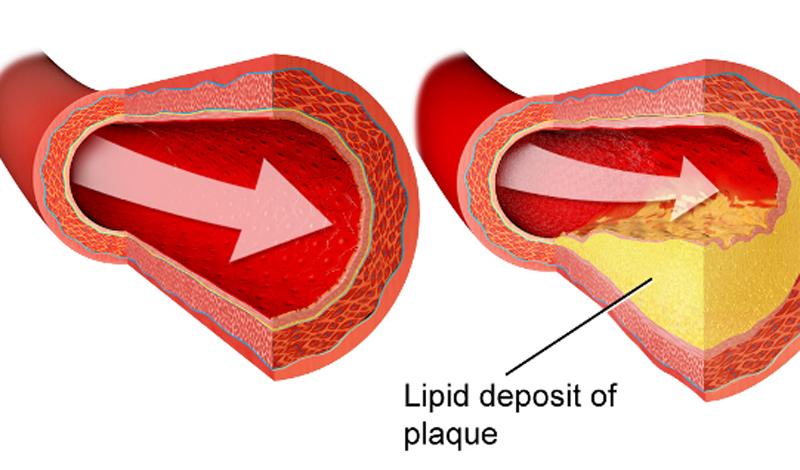 Так как холестерин не может растворяться в крови, он должен транспортироваться специальными носителями — липопротеинами. Они делятся на два типа: липопротеины низкой плотности, LDL, («плохой холестерин») и липопротеины высокой плотности, HDL, («хороший холестерин»).