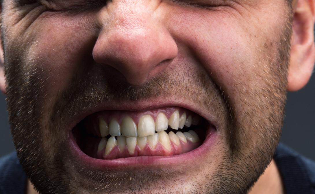 Зубная эмаль при бруксизме истончается очень быстро. Зубы становятся более чувствительными и, в конечном итоге, портятся.