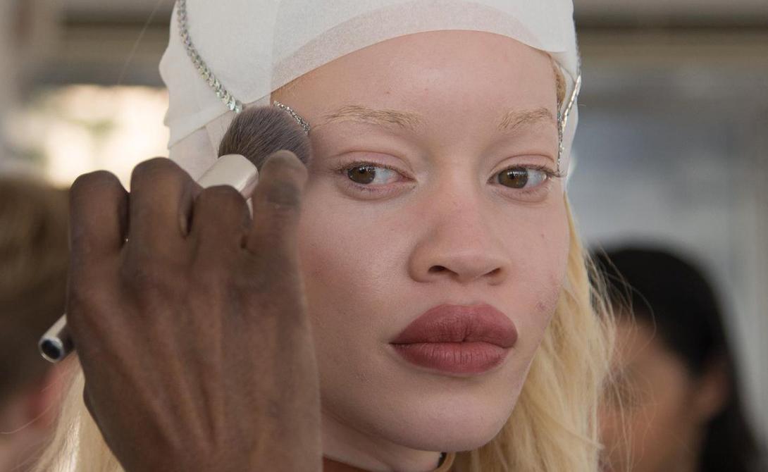Продолжительность жизни Люди с альбинизмом могут прожить долгую, здоровую жизнь так же, как и все остальные. Самая большая опасность исходит от рака кожи, который развивается более легко от незащищенного пребывания на солнце.