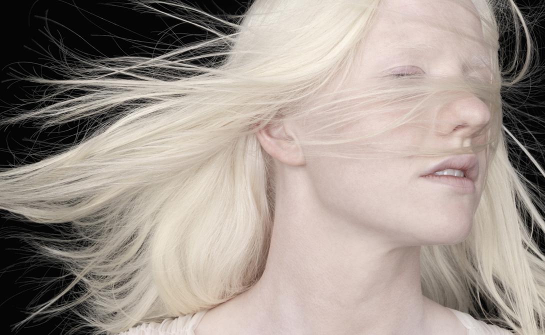 Зрение У альбиносов часто возникают проблемы со зрением. Нистагм (непроизвольные движения глаз), светобоязнь, дальнозоркость и близорукость — со всем этим приходится просто жить.