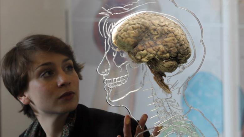 Мозг не контролирует тело В соответствии с новым исследованием Пьера Луиджи, кровяное давление, частота сердечных сокращений, температура тела, дыхание, а также некоторые другие функции организма становятся беспорядочными, когда мы входим в фазу быстрого сна. Другими словами, мозг теряет полный контроль, и наши тела делают все, что хотят.