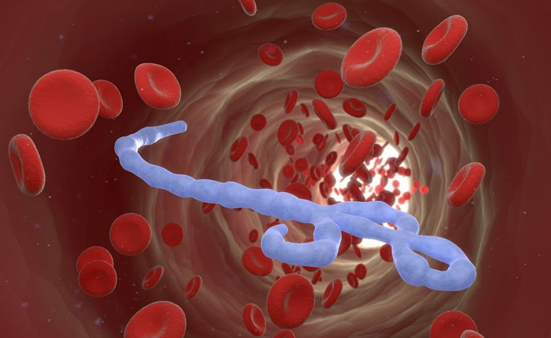 Вирус Эбола Этот опасный вирус был замечен врачами еще в 1976 году. В отличие от своих собратьев, Эбола не передается воздушно-капельным путем, зато может похвастать крайне высоким уровнем летальных исходов — погибает до 90% больных. Территорией распространения стали африканские республики, где большая часть населения существует за гранью бедности, а значит редко имеет доступ к чистой воде. Вспышки Эболы не беспокоили мировую общественность вплоть до 2014 года: кого там волновали 13 тысяч инфицированных африканцев и кого пугали 5 тысяч смертей, случившихся на далеком от цивилизации континенте. Но сейчас о вирусе говорят все — в этом году ВОС зафиксировал первые случаи заражения в Европе и США. Лекарства же не существует в природе, поскольку ни одна из фармкомпаний просто не занималась его разработкой. Хуже всего, что Эбола постоянно эволюционирует. Если вирус сумеет развиться до передачи воздушно-капельным путем, мир может ожидать эпидемию пострашнее бубонной чумы.