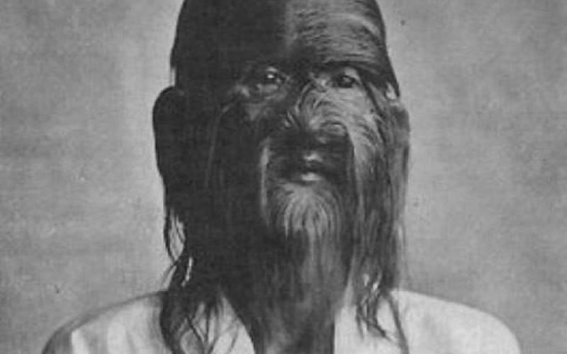 Тай Джин «Кунг-фу оборотень» Для многих цирковых фрик-шоу, где задействованы люди с гипертрихозом, часто важнее самого зрелища были истории жизни обладателей роскошных бород. История Тай Джина настолько полна мистики и духа приключений, что есть подозрение, что ее ему придумали уже в цирке. Джин родился в 1849 году в Китае и немало шокировал родителей своей внешностью. Посчитав, что их сын одержим демонами, они бросили его в лесу, где его подобрал странствующий шаолиньский монах. Он взял мальчика с собой в монастырь, где Джин возмужал и (вот это поворот) стал Великим мастером кунг-фу. Большую часть своей жизни Тай Джин учил мастерству кунг-фу других и скончался в 1928 году.