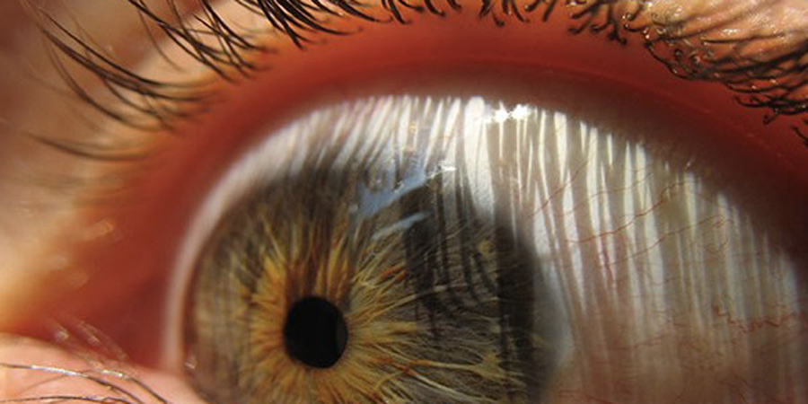 Глаза По сути, организм не воспринимает глазные яблоки как свою неотъемлемую часть. Поэтому они ограничены специальным аутоиммунным барьером. Если бы его не было, белые клетки крови с глазами быстро управились.