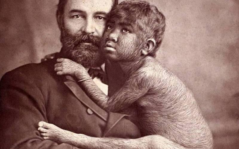 Крао «Недостающее звено» Крао, также известная как Недостающее звено эволюции, это не просто аттракцион, а целая научная аномалия, заставившая многих заинтересоваться теорией эволюции Дарвина. Шестилетнюю Крао обнаружил управляющий цирка Великий Фарини, который взял ее в турне по Европе и США. Необычная девочка получила широкую известность, и в дальнейшем о ней написали несколько научных работ, используя ее в качестве доказательства теории эволюции Дарвина.