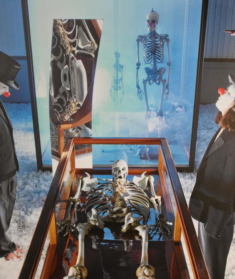 Юлиус Кох 2 метра 46 сантиметров Юлиус Кох, окрещенный восторженной прессой Le Geant Constantin, был одним из 15 самых высоких людей известных науке. Несчастный страдал врожденным инфантильным гигантизмом: развитие недуга привело стало одним из факторов, спровоцировавших гангрену обеих ног гиганта. Ампутация конечностей продлила жизнь бедняге всего на несколько недель. 30 марта 1902 года Кох умер в бельгийском городке Монсе. Там же, в музее естественной истории, до сих пор выставлен его скелет.