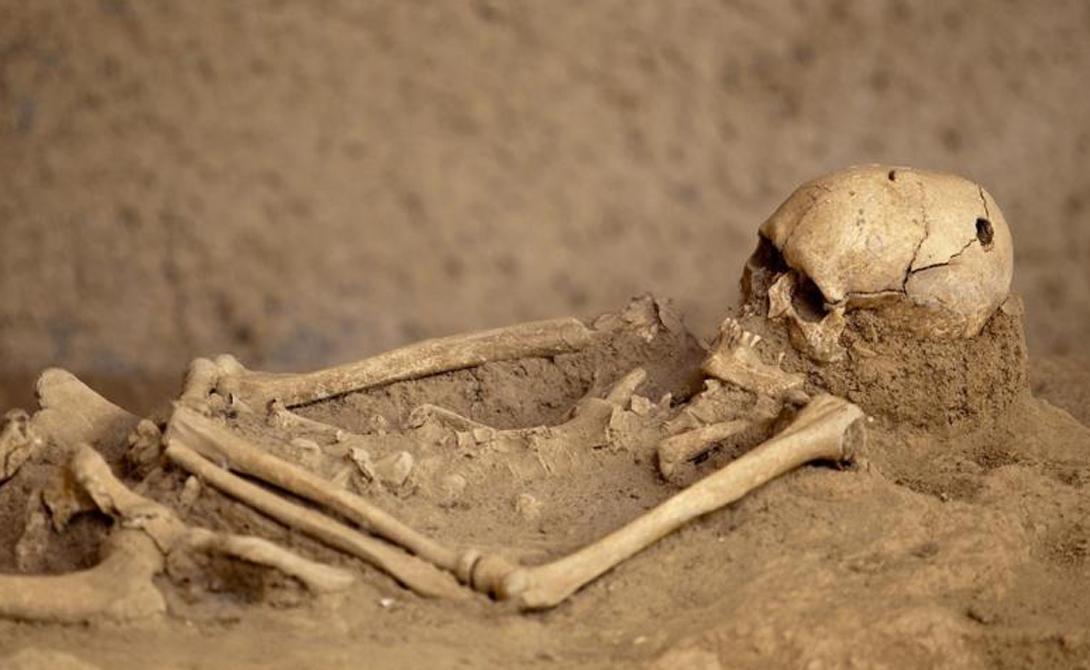 Перуанские хирурги В 1925 году на полуострове Паракас открыли массовое захоронение, датированное 300 годом до н.э. Все пять сотен обнаруженных в склепе мумий отличались странно вытянутыми черепами, с отверстиями в одинаковых областях. Последовавшее исследование позволило ученым немного приоткрыть завесу тайны: судя по всему, трепанации подвергались представители высшего сословия этой цивилизации. Отверстие в черепе открывало возможность заглянуть в мир духов — так, по крайней мере, считали представители культуры Паракас.