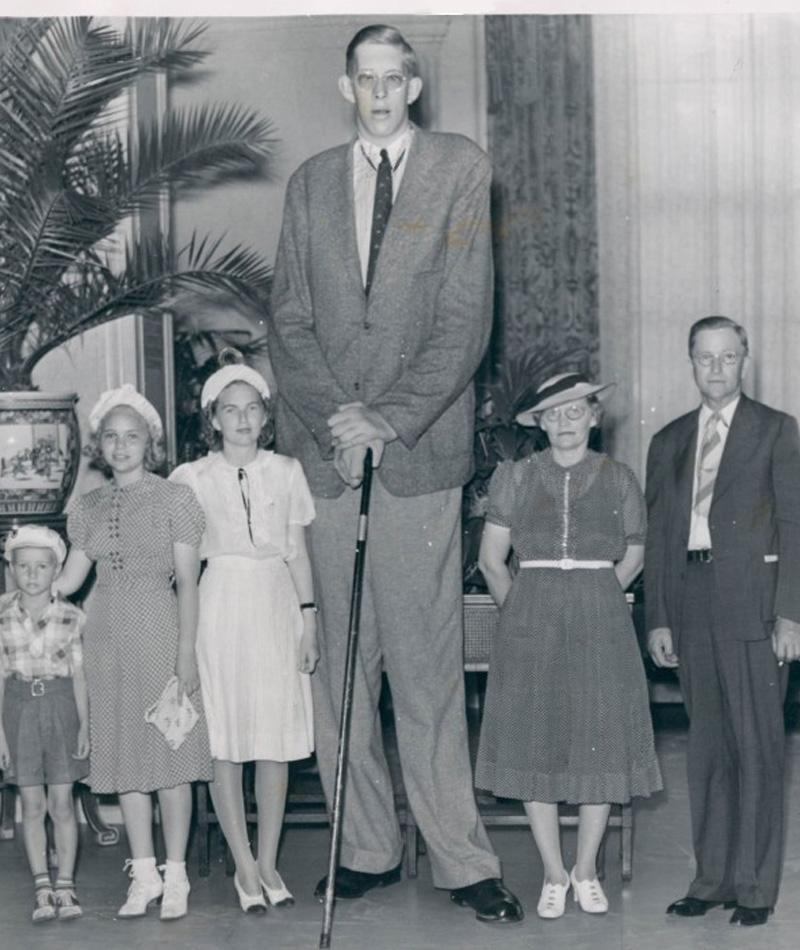Роберт Вадлоу 2 метра 72 сантиметра Гипертрофия гипофиза вызвала аномально высокий уровень человеческого гормона роста в организме Роберта. «Гигант из Иллинойса» вымахал под три метра, а чтобы ветер не сдувал с дороги, набрал целых 220 кг веса. Переизбыток гормона был настолько велик, что тело Роберта продолжило расти даже после зафиксированной смерти разума.