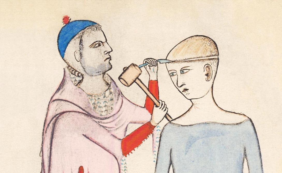Просвещенная Европа К XVI веку наука Европы уже начала развиваться качественно. Огромный прорыв совершили медики, изучавшие строение человеческого тела даже под угрозой костров инквизиции. Несмотря на это, трепанация и здесь оставалась весьма популярна. Знаменитого философа Игнатия де Лойолу пытались таким образом избавить от эпилепсии, а Лоренцо Медичи сам обратился к лучшим эскулапам Италии с просьбой проделать в черепе еще одну дыру. Не отдавая себе в этом полного отчета люди сохраняли практику жрецов далекой древности, «помогая» духовным и политическим лидерам усилить сакральные способности. Ситуация не изменилась вплоть до конца эпохи Просвещения.