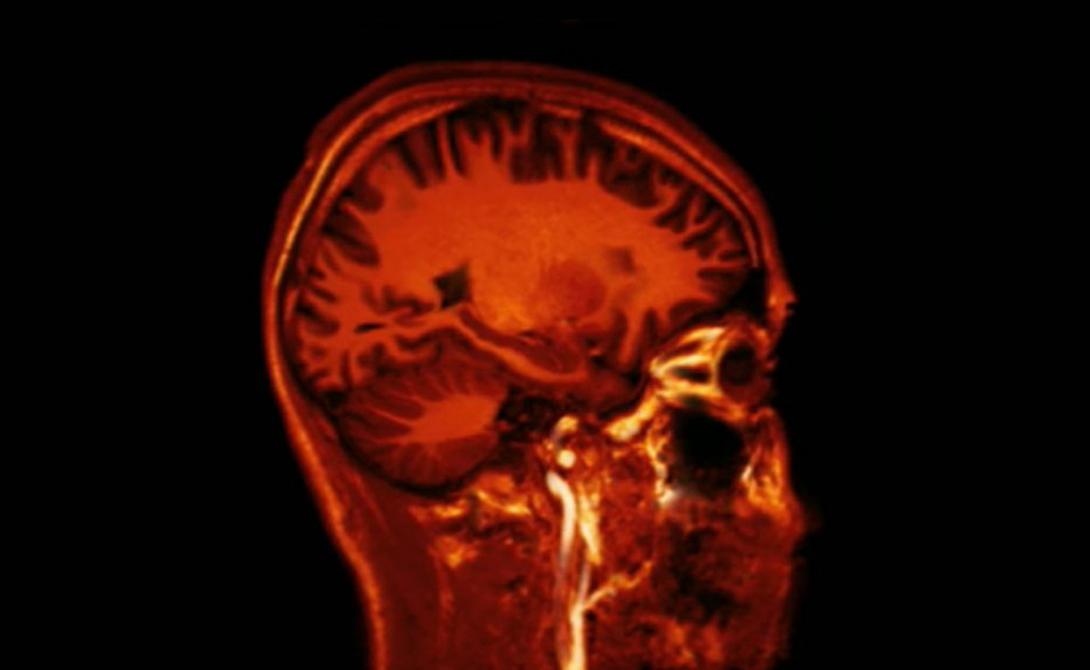 Деградация мозга Кроме того, спячка могла бы повредить и мозгу в целом. Исследование Леона Балцига из университета Валтoрны, Пенсильвания, однозначно показало деградацию синапсов, соединяющих нейроны мозга. Сконструированная компьютером модель человеческого разума продолжала показывать ухудшение работы даже после выхода из спячки. Спустя два месяца «пробуждения» условный человек превратился бы в безмозглый овощ.