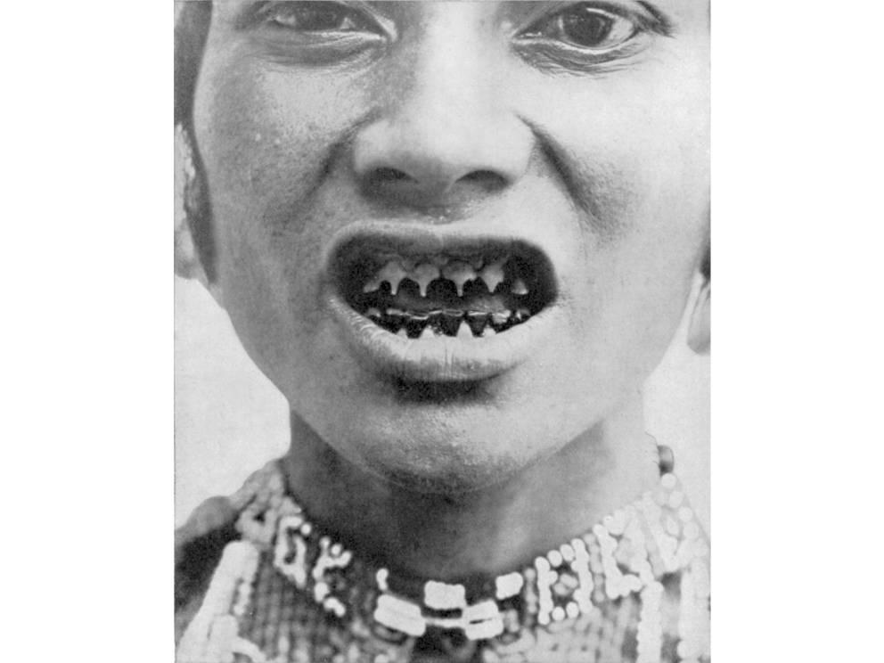 Острые зубы Ментаваи Индонезийское племя ментаваи считают заостренные зубы эталоном красоты. Чем острее и тоньше, тем более желанна женщина. Ритуал совсем не обязательный в культуре, но очень многие девочки проходят его в подростковом возрасте по собственному желанию, чтобы привлечь противоположный пол.