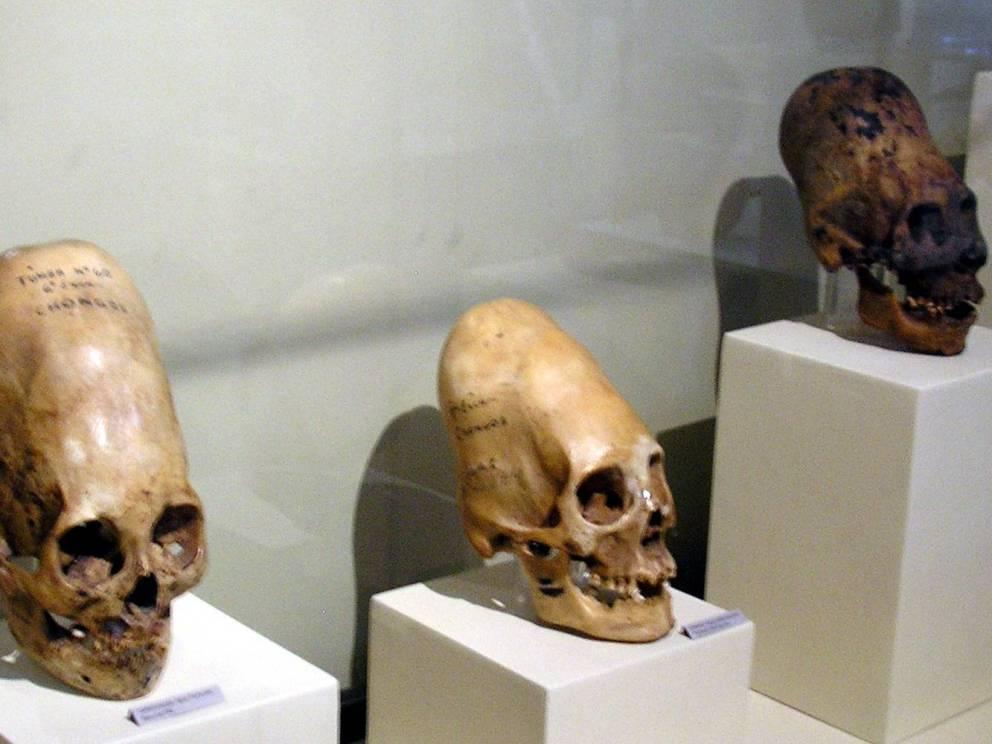 Длинный череп Перу Этот ритуал был распространен 45 000 лет назад в древних перуанских культурах. С младенческого возраста черепа детей обертывались тканью, чтобы направить рост вверх. Судя по всему, такому подвергались только дети богатых семей.