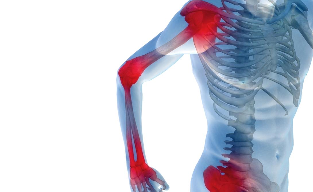 Боль в суставах Износ хрящей, характерный для людей пожилого возраста, приводит к остеоартриту. Он вполне может быть причиной боли в суставах — если повезет. Мало кто знает, что постоянная боль в суставах появляется на определенной стадии развития гепатита С, прозванным врачами «ласковым убийцей».