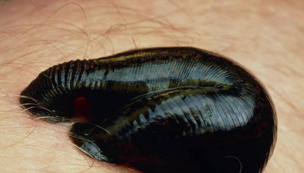 Пиявки Этих кровососущих тварей использовали еще эскулапы Древней Греции. Вплоть до конца XIX века пиявок назначали от ушибов, головных болей и даже депрессии. Антикоагулянт в слюне разжижает кровь, предотвращая ее свертывание. Как ни странно, но в современной медицине пиявкам тоже есть место: врачи ставят их вокруг кожных трансплантатов для улучшенного заживления.