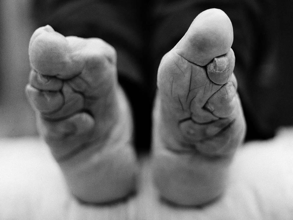 Маленькая стопа Китай На протяжении почти тысячи лет маленькие девочки Китая подвергались ужасной процедуре бинтования стоп. Рост стопы останавливался, пальцы скручивались и высыхали, создавая иллюзию миниатюрных и более привлекательных ног.