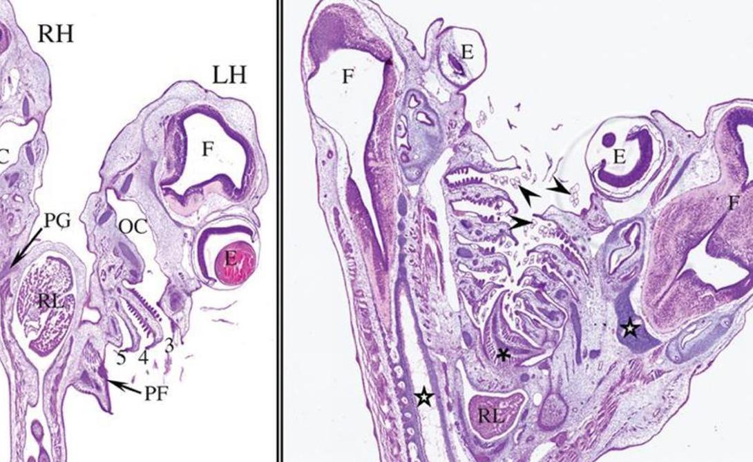 Парные органы Каждая из голов имела рот, пару глаз, собственный мозг и хорду. По сторонам шеи были расположены пять жаберных отверстий, все как у обычных представителей вида. А вот все остальное было совсем не стандартным. Две головы сливались в единое тело, внутри которого были два сердца, два желудочка и две печенки. Существо также разделяло один кишечник, почки и половые органы.