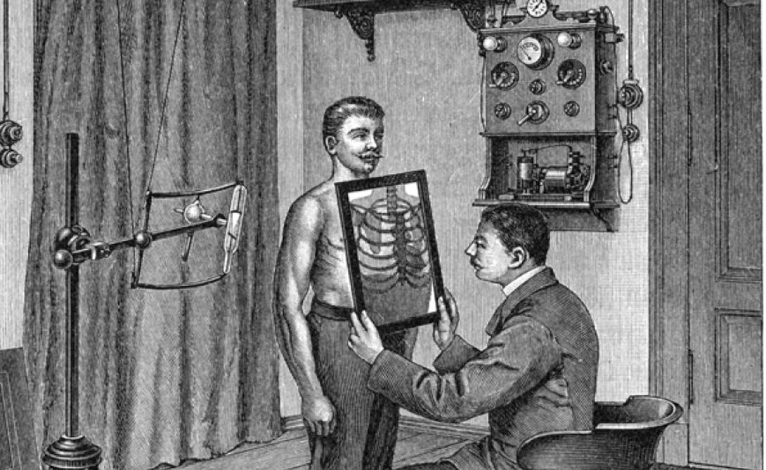 Рентген Вильгельм Конрад Рентген не считался видной величиной в мире физики 1895 года. Его открытие нового вида излучения произошло совершенно случайно и спровоцировало сильнейший скачок в развитии медицины. В 1901 году Рентген был удостоен самой первой в мире Нобелевской премии по физике.