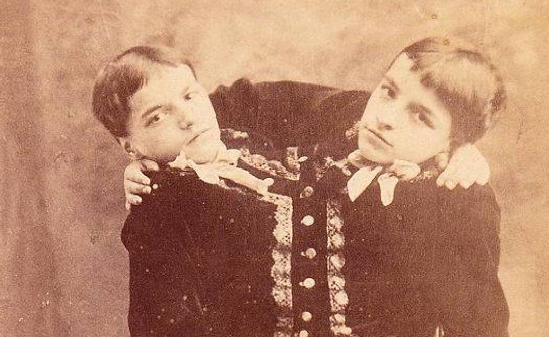 Джакомо и Джованни Батиста Каждый из разделенных до пояса близнецов Батиста мог контролировать только одну ногу, так что с координацией движений у этих ребят было не очень хорошо. За несколько туров по Европе Джакомо и Джованни заработали достаточно, чтобы купить себе и дом, и любовь.