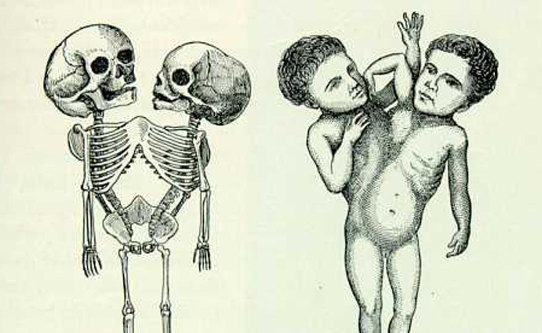 Ритта и Кристина Пароди Рождение сиамских близнецов стало ужасным ударом для семьи Пароди. Бедные итальянские крестьяне несколько лет копили деньги на поездку во Францию, к врачам, но те оказались бессильны. Более слабая с детства Ритта не выдержала путешествия и умерла под надзором хирургов в возрасте восьми месяцев. Кристина же, отличавшаяся крепким здоровьем, погибла несколько минут спустя.