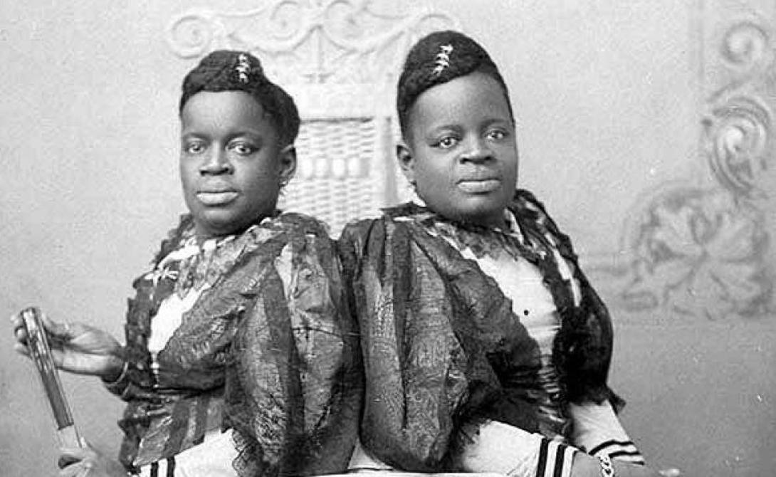 Милли и Кристин Маккой Милли и Кристин Маккой родились в рабстве: в 1851 году в Северной Каролине держать рабов вообще считалось хорошим тоном. Сиамских близнецов продавали несколько раз, пока они не оказались в Англии. По счастью, последний владелец, Джозеф Пирсон, оказался хорошим человеком — он позволял девочкам оставлять себе часть денег от выступлений и даже представил их королеве Виктории.