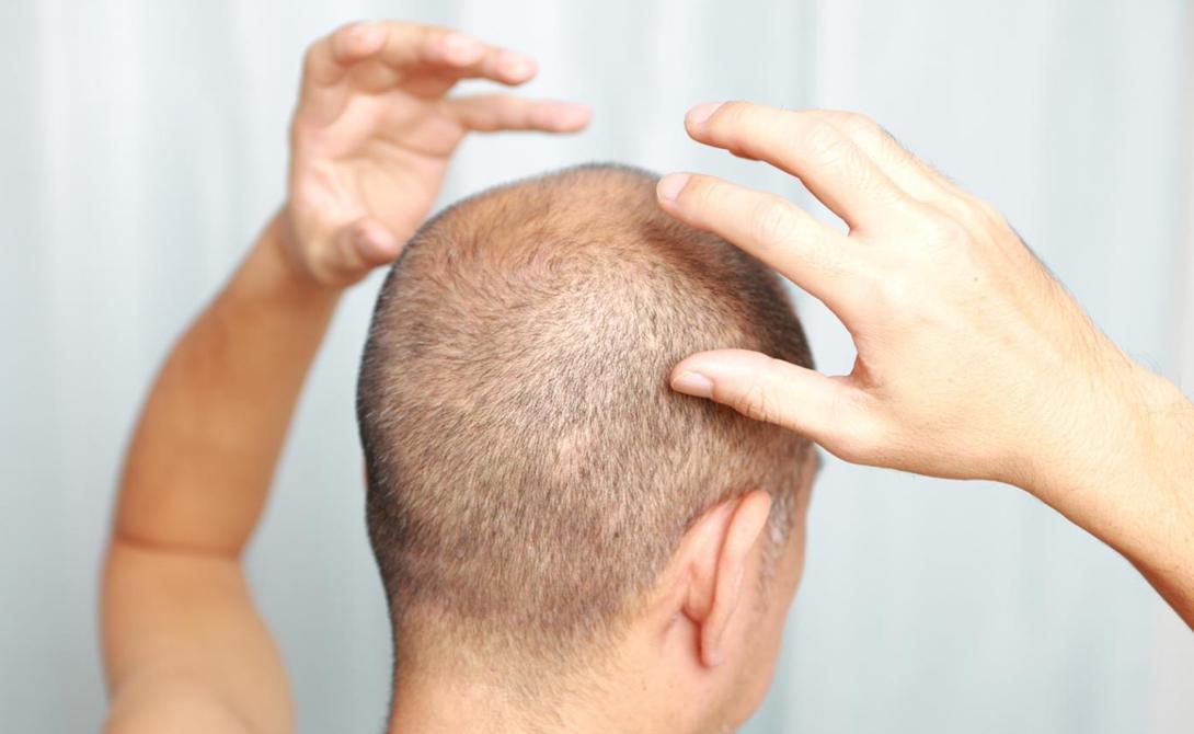 Выпадение волос Считается, будто холод плохо влияет на волосяной покров. Волосы и в самом деле становятся более сухими и хрупкими. Но в то же время, они начинают расти быстрее и становятся гуще: организм защищает себя от холода так же, как делал в далеком прошлом.