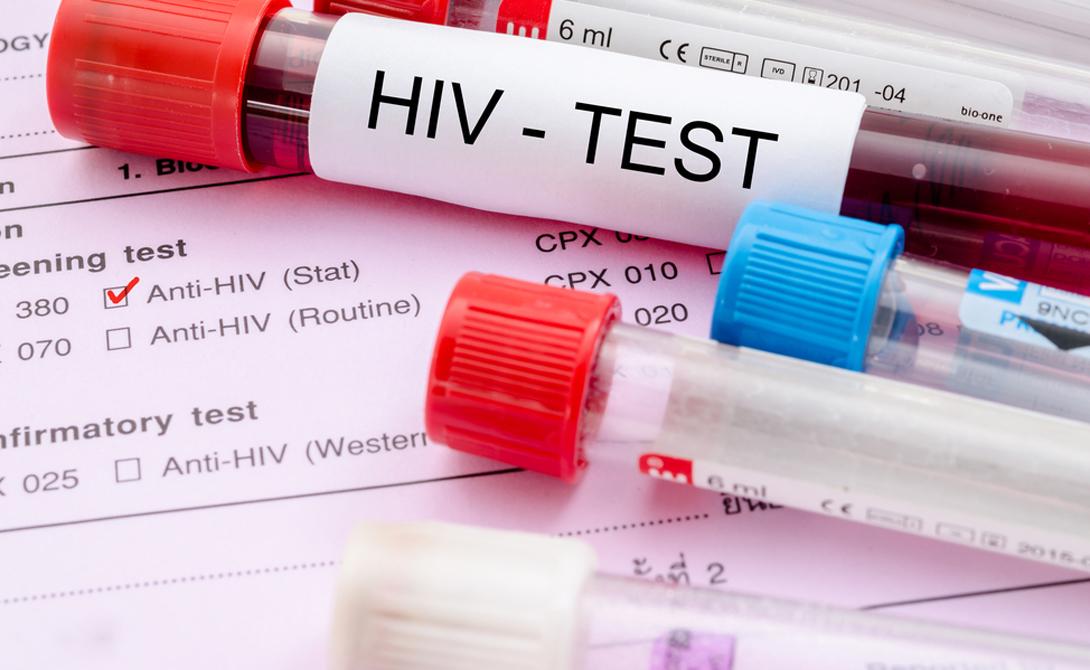 ВИЧ До конца XX века никто никогда не слышал о вирусе иммунодефицита человека, а сейчас ВИЧ является одной из страшнейших болезней мира. Всего за тридцать лет существования вирус появился у 40 миллионов людей. Врачами зафиксировано более четырех миллионов смертей, а врачи только сейчас понимают, как следует лечить эту заразу.