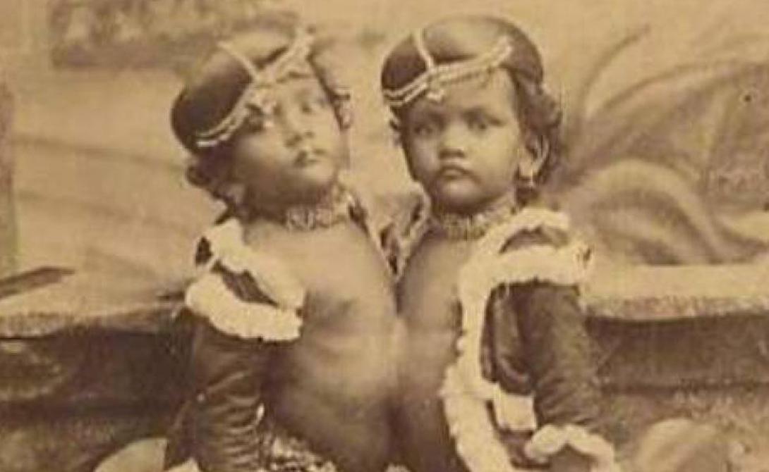 Радика и Дудика Близнецы, известные также как сестры Орисса, путешествовали по миру в составе труппы некоего Капитана Колмана. Он был хорошим человеком и относился к Радике и Дудике скорее как отец, а не как владелец-эксплуататор. К сожалению, в 1902 году Дудика заболела туберкулезом. В попытке спасти жизнь Радике, врачи разделили близнецов. Операция прошла успешно, но Дудика умерла через месяц от туберкулеза, который через некоторое время погубил и Радику.