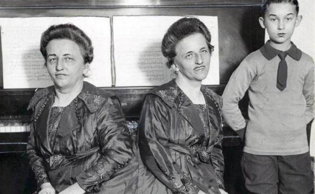 Роза и Жозефа Блажек Родители стали показывать девочек публике еще с младенчества, так они копили деньги на операцию по разделению близнецов. К сожалению, когда нужная сумма уже была собрана, Роза и Жозефа стали слишком взрослыми для успешного хирургического вмешательства. Тем не менее, сестры Блажек жили вполне счастливо, Роза даже родила ребенка. В начале 1922 года Джозефа заболела менингитом — за несколько месяцев зараза распространилась и на Розу, врачи же вновь оказались бессильны помочь несчастным близнецам.
