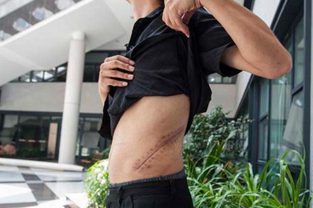 Хэбей-гуми Китай Примерно полтора миллиона китайцев ежегодно нуждаются в пересадке органов, и только десять тысяч из них могут рассчитывать на легальную операцию. Всем остальным приходится обращаться в столицу Хэбэй, Шицзячжуан. Только за два прошлых месяца власти провели здесь несколько рейдов: удалось спасти 127 человек и задержать 18 квалифицированных врачей. Стоит ли говорить, что все это — лишь капля в море.