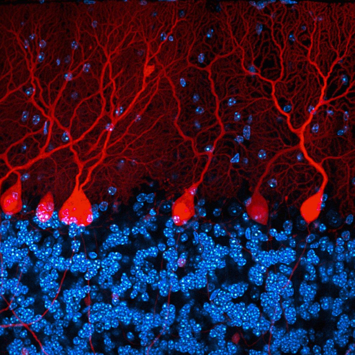 Мозговое вещество трансгенной мыши в 3D